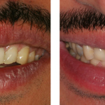 dental-implants-brentwood