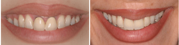 gums and jawbone corrective treatments