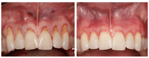 Before & After Gum Grafting Procedure in LA