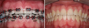 Before & After Braces in LA