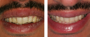 Dental Implants Before & After Photo in LA