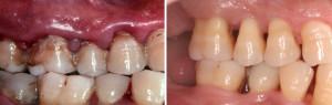 LA Gum Disease Specialists