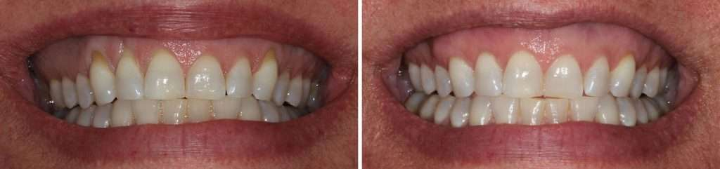 Gum and Osseous Surgery Treatment in Brentwood