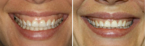 Gummy Smile in Los Angeles Treatment