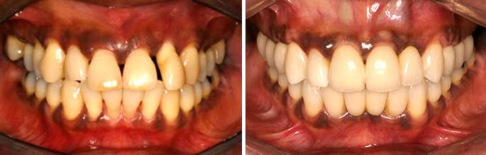 Brentwood Tooth Implants Procedure
