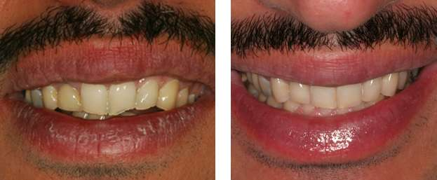 Brentwood Implant Periodontal Specialists