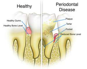 Periodontal and Gum Disease Treatment LA