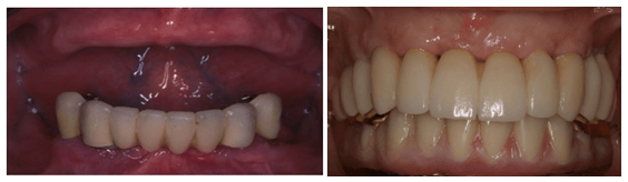 Complete Upper Teeth Replacement Surgery in LA