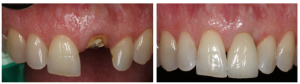 Single Tooth Replacement Specialists LA