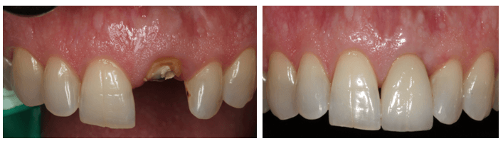 Single Tooth Replacement in Los Angeles