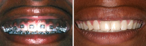 Smile Makeover Procedure Before & After
