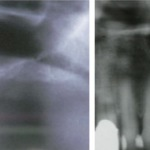 aalam-krivitsky-before-after-sinus-bone-graft