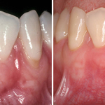 gum graft before after 2