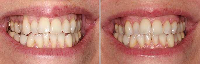gum grafting before after 1