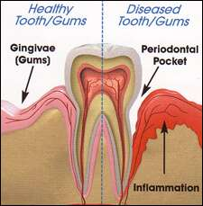 periodontal scaling and root planing image