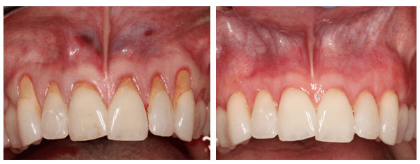 Gum-Graft-Before-and-After