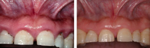 Oral Treatments by LA Periodontal Specialists