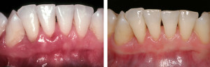 Dental Implant & Gum Rejuvenation Specialists