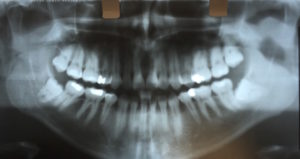 wisdom tooth removal dentist LA