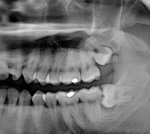 wisdom tooth removal cost beverly hills