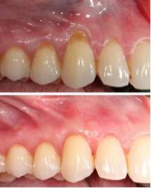 PRF Therapy for Gum Treatment Recovery in LA
