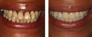 Dental Implant Before & After Treatment