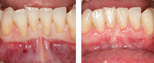 Los Angeles Gum Treatments by Periodontists