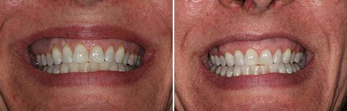 Brentwood Gumline Surgical Procedure