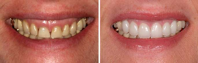 Brentwood Lip Repositional Periodontist