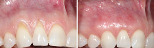 Gum Recession Treatment in Los Angeles
