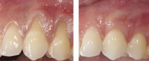 gum-grafts-brentwood-periodontist-aalam-krivitsky-dds