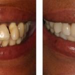Dental-Implants-Brentwood