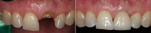 Tooth Loss Treatment