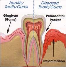 developing gum disease