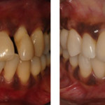 Aalam-Krivitsky-Brentwood-Before-After-Periodontal-Procedures-2-large-535x257