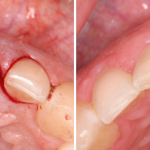extraction-and-socket-graft-before-after