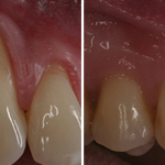 gum-graft-before-after-1