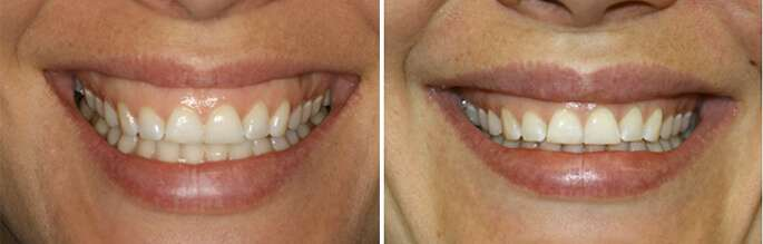 gummy smile lip repositioning before and after photo