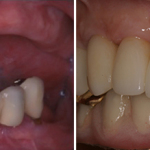 multiple-teeth-implant-before-after