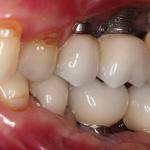 peri-implant-disease