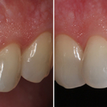 single-tooth-implant-before-after