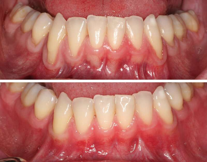 Brentwood Gum Recession dental experts