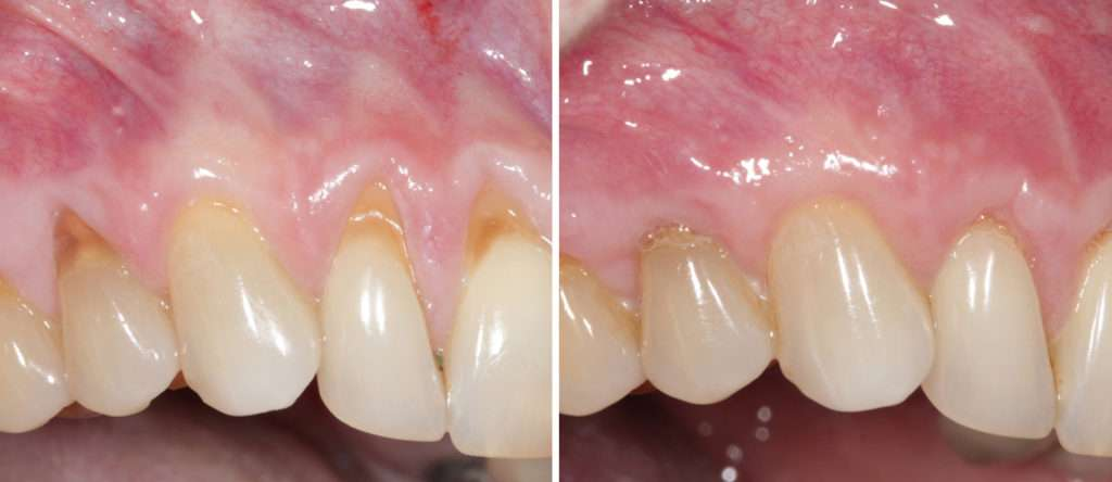 Gum Recession Periodontists Los Angeles