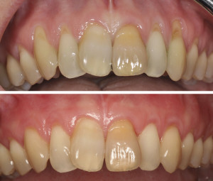 receding gums treatment los angeles