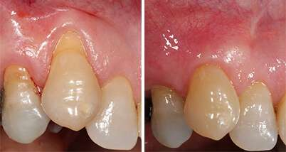 Los Angeles Receding Gums treatment
