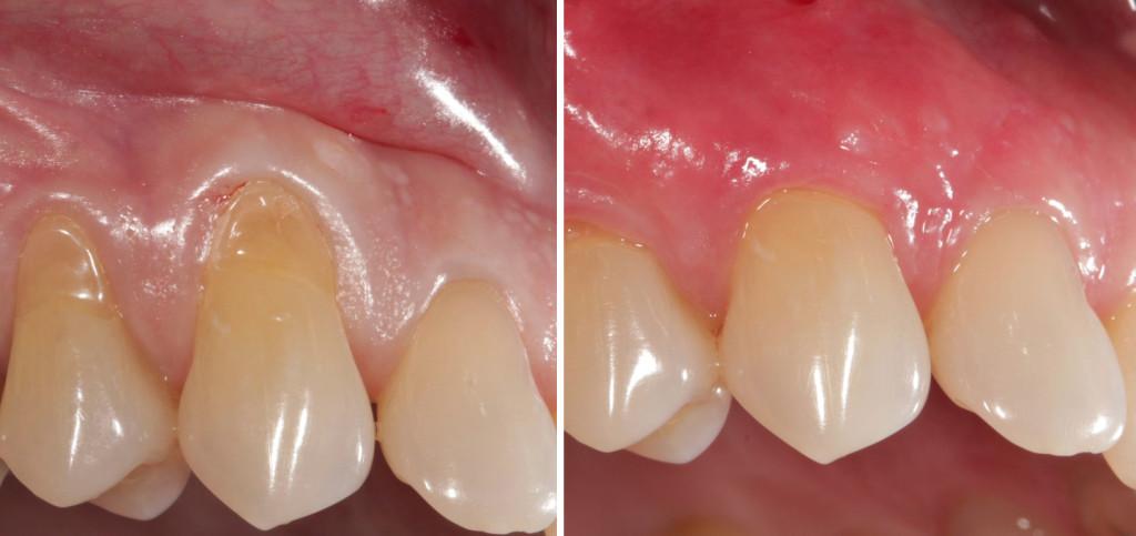 help for receding gums beverly hills