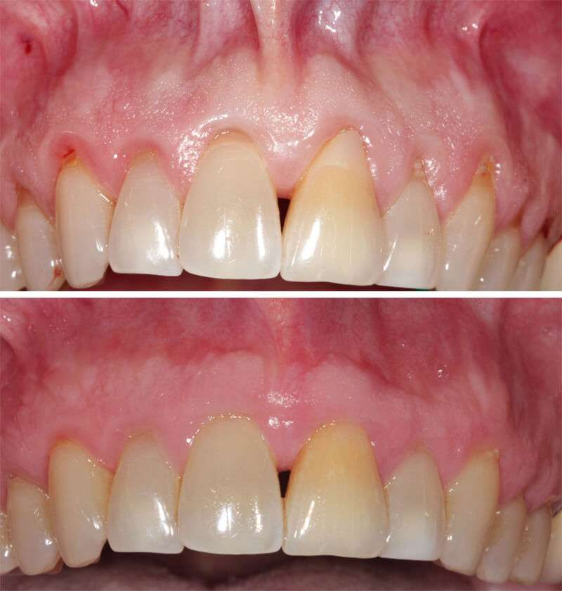 Receding Gums Surgery los angeles