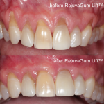 RejuvaGum Lift™ for receding gums before-after