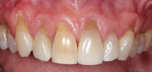Receding gums are unattractive and may lead to tooth sensitivity and eventual tooth loss.
