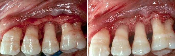 Brentwood Gum Disease Recession